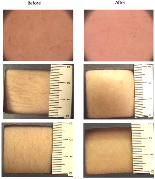 Picture showing part of the body before and after use of Glyquex cream for treatment of excessive hair growth